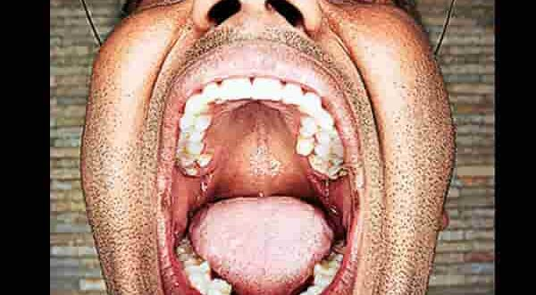 man with most teeth in the world